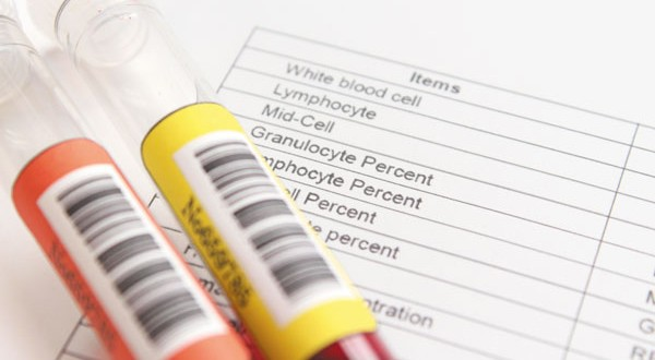 blood-test-might-program-memory-loss