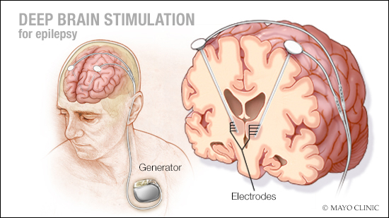 brain-stimulation-may